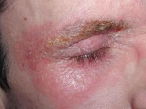 Dermatitis seborreica. / http://www.teleclinicaonline.com