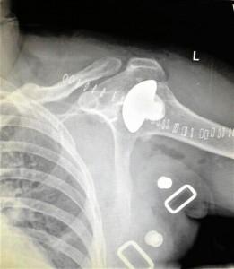Imagen del menisco insertado en el hombro del paciente.