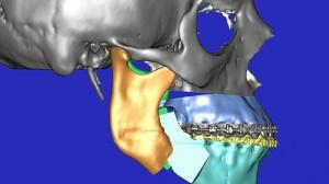 Reconstrucción de una mandíbula mediante técnicas 3D
