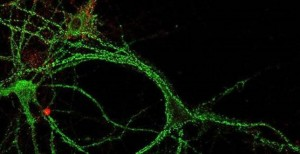 El descubrimiento ha sido publicado en la revista 'EMBO Molecular Medicine'. / Foto: CSIC