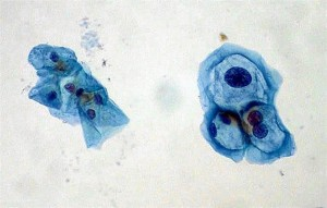 Los científicos ponen de relieve la importancia de dentificar el genotipo del VPH.