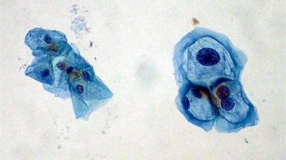 Conocer el genotipo del virus del papiloma humano permitirá determinar el riesgo de padecer cáncer