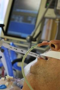 ventilación mecánica recibida en la UCI