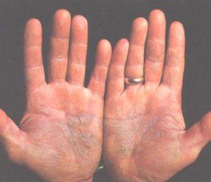 Psoriasis en las manos.