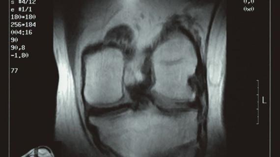 Las terapias regenerativas podrían ser la clave del futuro para tratar la artrosis moderada