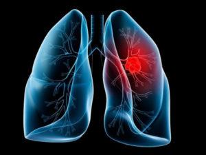Cáncer de pulmón. / http://www.medciencia.com