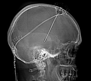 Radiografía del cráneo de un sujeto