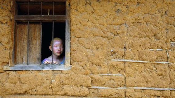 Una exposición fotográfica muestra lo que implica ser albino en Tanzania