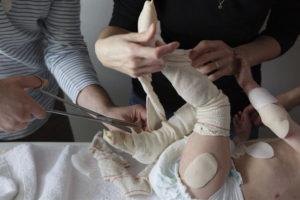 Curas a un paciente con piel de mariposa. / Foto:  Wayne Chasan / www.chasan.com / Europa Press
