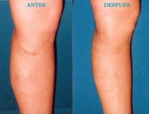 Hay diversos factores que pueden provocar la aparición de esta patología.