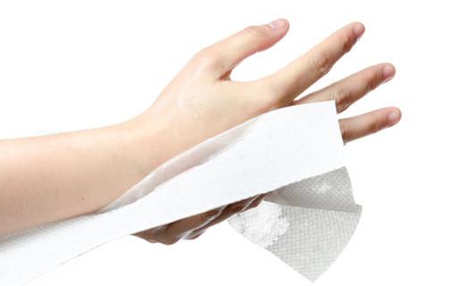 ¿Hiperhidrosis en manos, pies o axilas? Hay solución