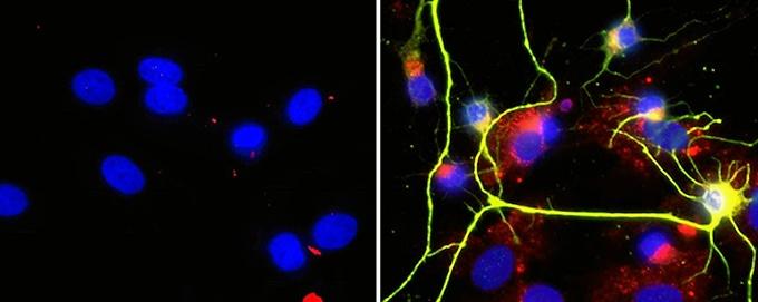 El bloqueo de una enzima cerebral permite activar la formación de nuevas neuronas