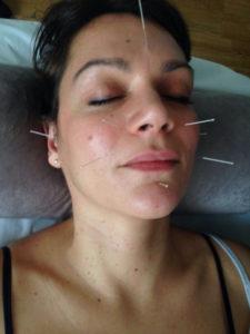 García practica la acupuntura.