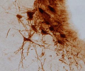 Neuronas del Locus Coeruleus.