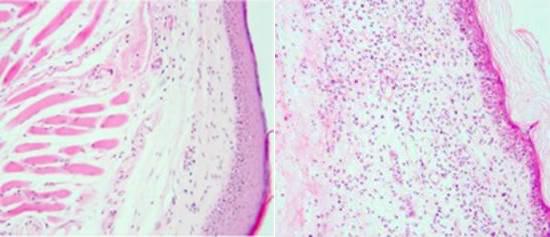 Descubren un nuevo mecanismo de regulación inmune utilizado por los virus