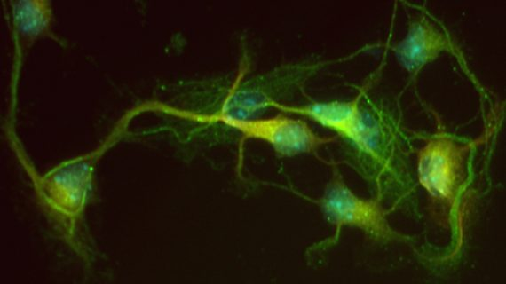 Un estudio muestra nuevas propiedades de una molécula para la posible terapia de la enfermedad de Alzheimer