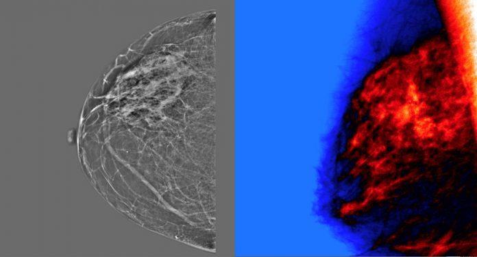 Inteligencia Artificial para mejorar la precisión de las mamografías
