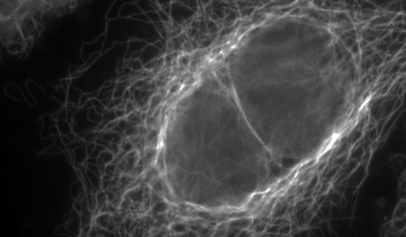 Revelan las señales que controlan estructuras clave en terapias contra el cáncer