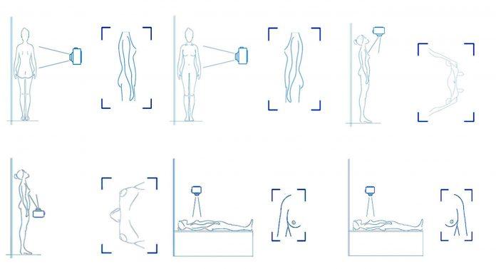 Diseñan el primer protocolo fotográfico para planificar cirugías de cáncer de mama