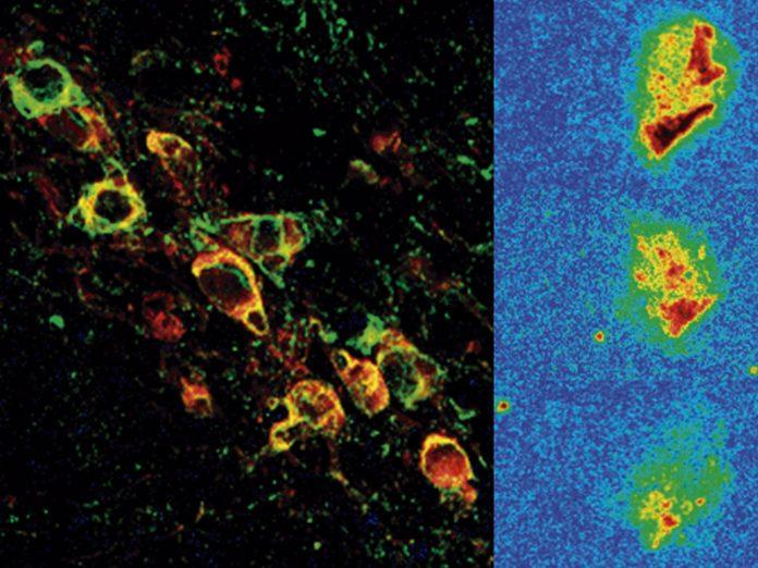 Ensayo pre-clínico de una nueva molécula para retrasar la progresión del párkinson
