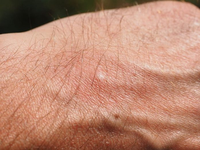 Llaman a prevenir las picaduras de insectos ante la detección de 18 casos de meningoencefalitis vírica
