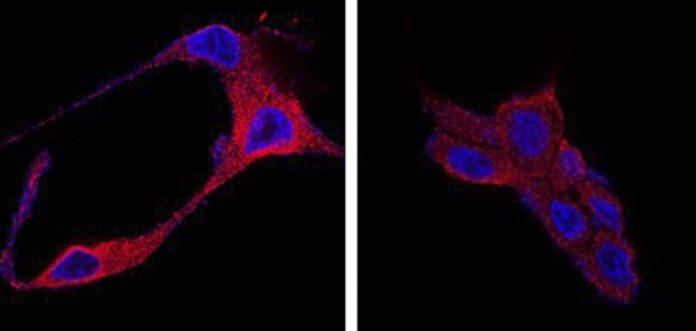 Tratamiento para el cáncer de próstata que usa nanopartículas orgánicas